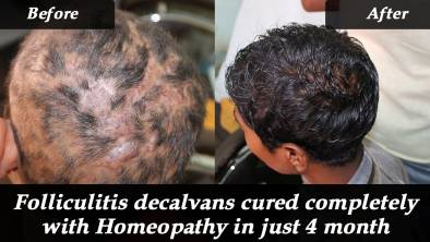 Folliculitis decalvans cured completely with Homeopathy in just 4 month