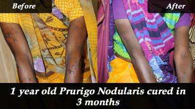 1 year old Prurigo Nodularis cured in 3 months with homeopathy