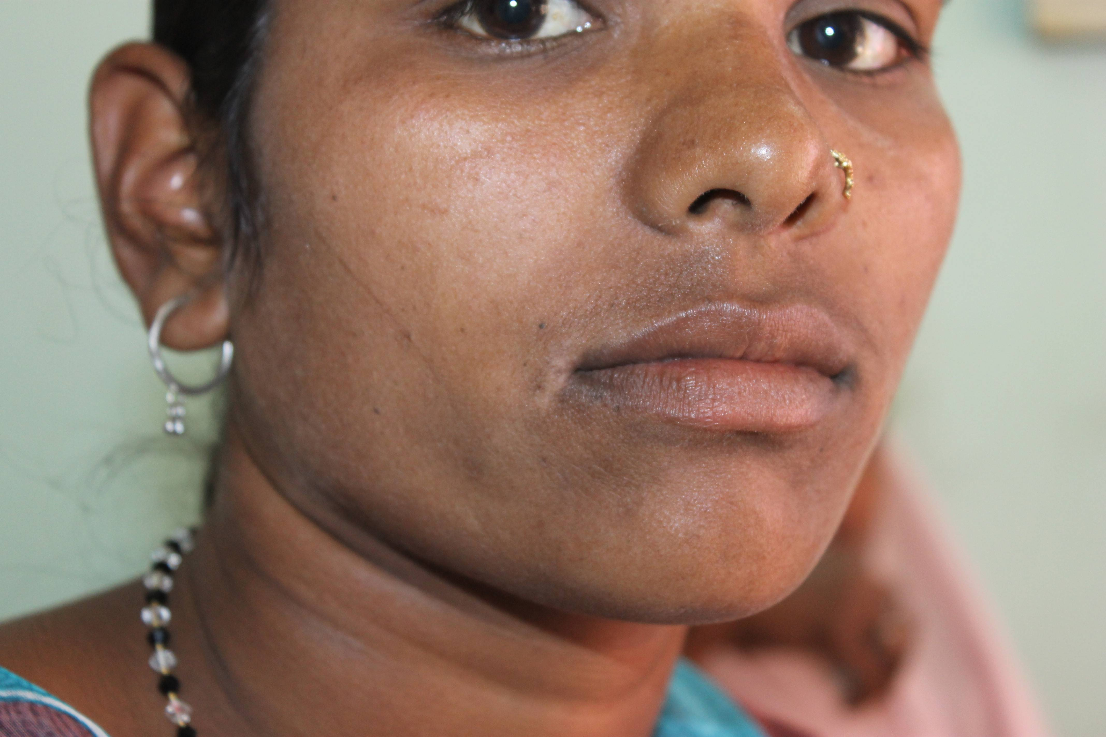 Miraculous Improvement And Recovery From Vitiligo With Homeopathy Case Study